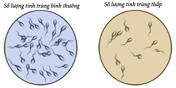 Một giọt tinh trùng có thai được không?